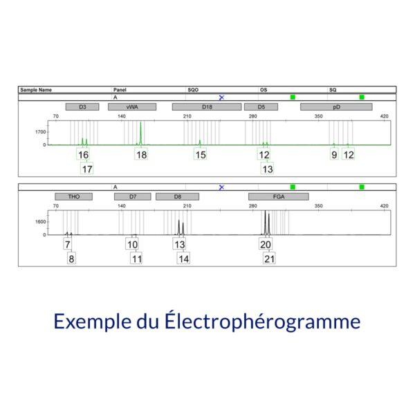 Produit Exemple du électrophérogramme